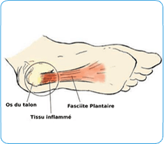 douleur arche du pied